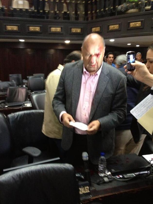 El diputado Julio Borges en pleno desarrollo de la sesión de la Asamblea Nacional, fue victima de agresión, al igual que el diputado Willian Davila, por parte de algunos de los diputados del oficialismo, informo el Diario Noticias 24 de Venezuela.