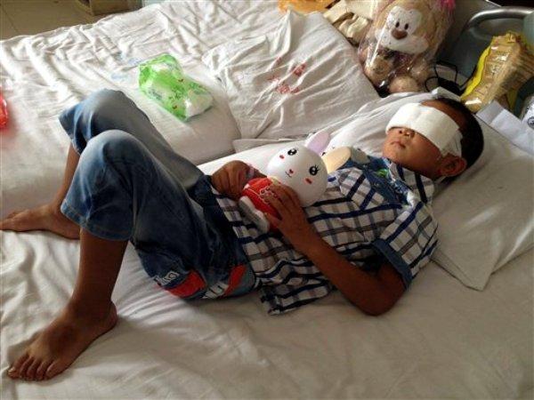 Guo Bin se recupera de un ataque sufrido en la ciudad de Linfen que lo dejó ciego permanentemente, en un hospital de Taiyuan, en la provincia de Shanxi en el noroeste de China, el miércoles 28 de agosto de 2013. Las autoridades buscan a una mujer acusada de extraer los ojos del niño de seis años. (Foto AP)