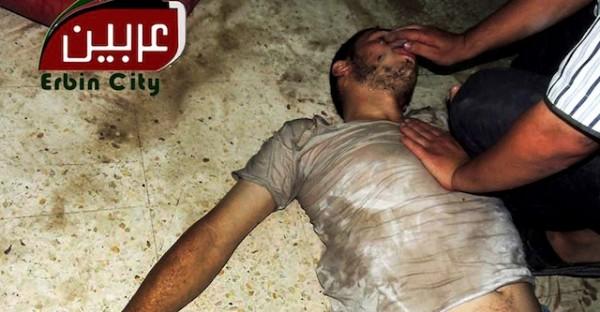 """Esta imagen de periodismo ciudadano proporcionada por el Comité Local de Arben, que ha sido comprobada con base en sus contenidos y otras pesquisas de AP, muestra a un hombre sirio recibiendo atención en Arben, en Damasco, Siria, el miércoles 21 de agosto de 2013. Las fuerzas del régimen lanzaron ataques con intensa artillería el miércoles en los suburbios orientales de la capital, en lo que dos grupos opositores aseguraron fue un ataque con """"gas venenoso"""" que mató a decenas de personas. (AP Foto/Local Committee of Arbeen)"""
