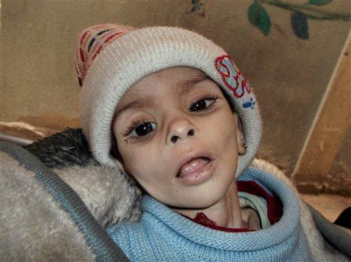 En esta foto sin fecha provista por el grupo Palestinos de Siria, se ve a Israa al-Masri, una niña que después murió por enfermedad y hambre, el 11 de enero de 2014, en el vecindario de Yarmouk, en Damasco, Siria. Inquietantes imágenes de niños y ancianos muriendo de hambre están surgiendo en este vecindario capitalino sitiado por las fuerzas leales al presidente Bashar Assad que prohíben el paso de alimento y ayuda a la zona controlada por rebeldes. (Foto AP/Palestinos de Siria)