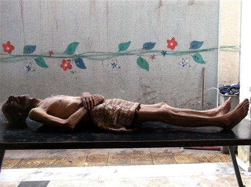En esta foto sin fecha provista por el grupo Palestinos de Siria, se ve a Awad al-Saidi, quien murió por enfermedad y hambre, el 10 de enero de 2014, en el vecindario de Yarmouk, en Damasco, Siria. Inquietantes imágenes de niños y ancianos muriendo de hambre están surgiendo en este vecindario capitalino sitiado por las fuerzas leales al presidente Bashar Assad que prohíben el paso de alimento y ayuda a la zona controlada por rebeldes. (Foto AP/Palestinos de Siria)