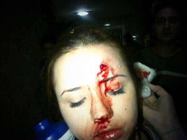 Foto tuiteada por el dirigente de la MUD Leopoldo López, de una supuesta estudiante de la Universidad de Mérida, herida en los enfrentamientos de esta noche. LaRepública no ha logrado comprobar la autenticidad de la foto.