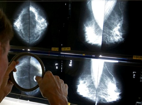 Un radiólogo usa una lupa para estudiar una mamografía en esta foto tomada el jueves 6 de mayo del 2010 en Los Angeles. (Foto AP/Damian Dovarganes)