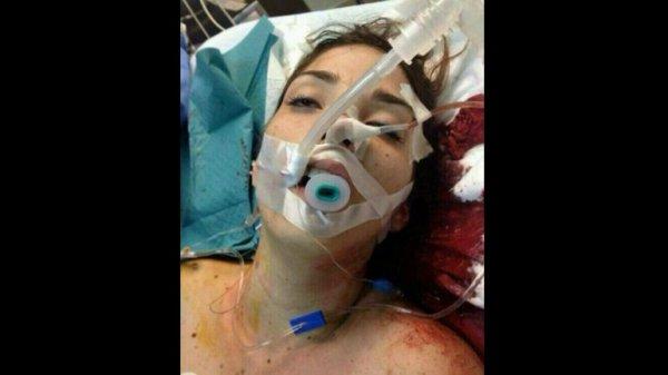 La Miss Turismo de Carabobo Génesis Carmona, herida mientras protestaba.