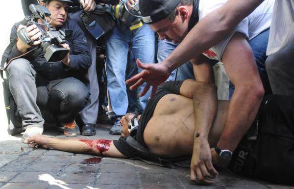 Un hombre yace en el piso luego de ser herido de bala durante una manifestación en Caracas hoy, miércoles 12 de febrero de 2014.