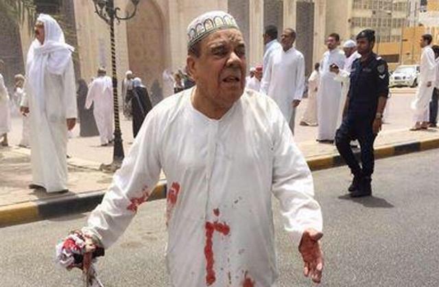 Esta imagen distribuida por el noticiario Kuwaitna, muestra a un hombre con su dishdasha bañada en sangre luego de un atentado mortal en una mezquita chií en la capital de Kuwait el viernes 26 de junio de 2015. (Kuwaitna News via AP)