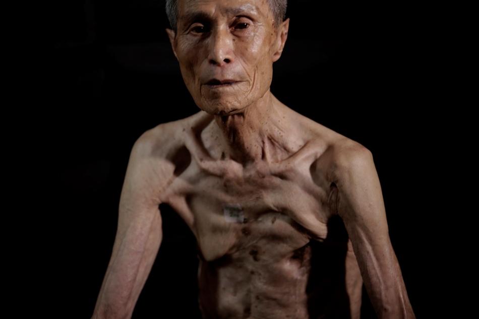 En esta imagen, tomada el 30 de junio de 2015, Sumiteru Taniguchi, de 86 años, un sobreviviente de la bomba atómica de 1945 sobre Nagasaki, posa para una foto durante una entrevista en su oficina en Nagasaki, en el sur de Japón. Durante 70 años, Taniguchi, presidente del Consejo de Sobrevivientes de la Bomba Atómica de Nagasaki, ha vivido una red de heridas que cubren la mayor parte de su espalda mientras los restos de tres costillas medio podridas ejercen una presión constante contra sus pulmones, lo que le dificulta la respiración. (Foto AP/Eugene Hoshiko)